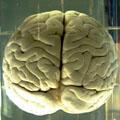 Carleton graduate student speaks to CTV as part of Brain Awareness Week.