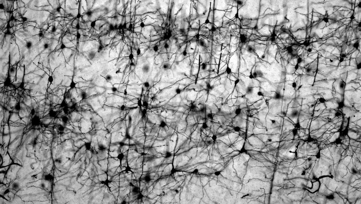 Solving the Parkinson's Puzzle